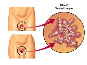 Genitalherpes tritt im Genital- oder Afterbereich auf und äußert sich durch Bläschen und Rötungen. gefunden auf: https://www.herpes-lindern.de/symptome-und-verlauf.html