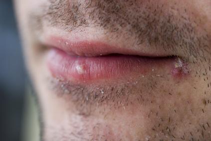Genitalis symptome herpes Genital Herpes: